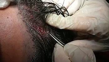 FUE Haartransplantation Ohne Rasur Empfangsbereich